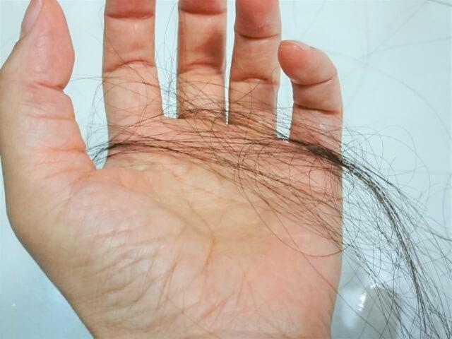 ストレスを溜めると抜け毛が発生する|仕組みとストレス解消法